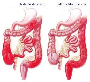 Morbo di Crohn - digerente