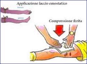Incidenti e primo soccorso: compressione – trasfusione – emorragia