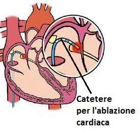 Cuore: ablazione-cardiaca
