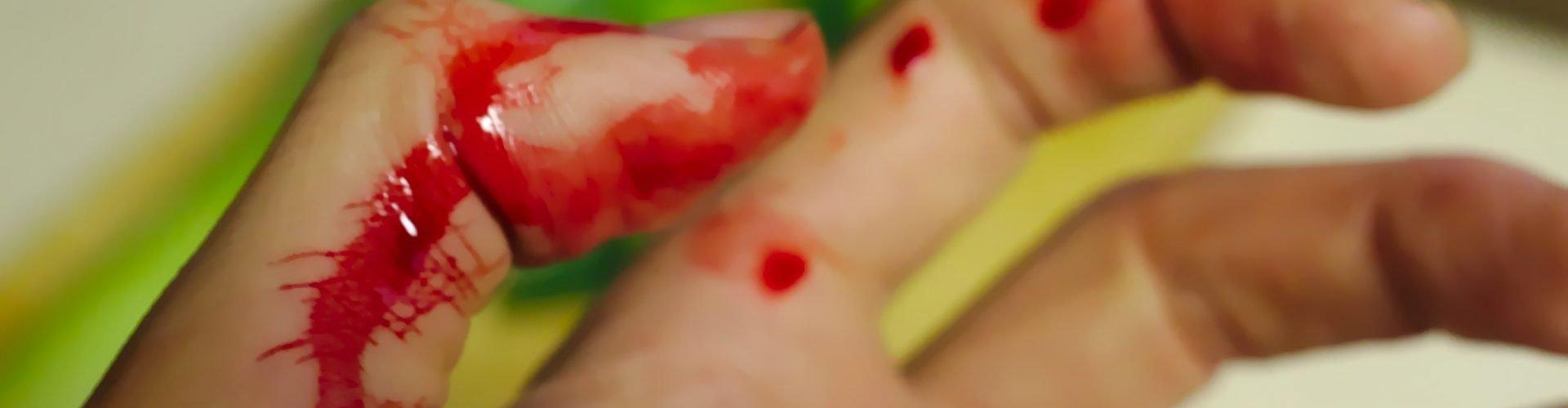 Sognare sangue macchie di sangue, significato simboli e numeri da giocare