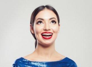 Arrivano le vacanze: come viverle bene con l'apparecchio ortodontico